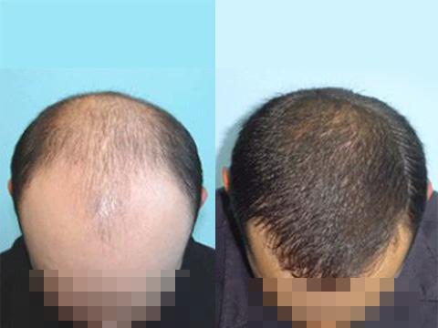 脱发患者的曙光---干细胞预防脱发和促进毛发再生效果显著