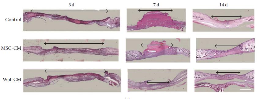 再生医学领域重大突破---工程化的干细胞条件培养基能明显促进伤口愈合和毛囊再生